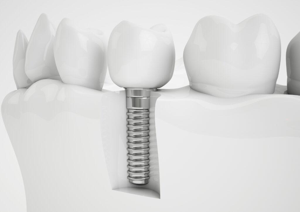 Qual é a duração dos implantes dentários?